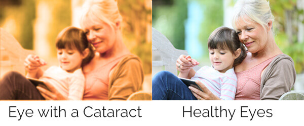 Cataract Symptom
